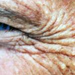 Bagaimana Mencegah Penuaan Dini?